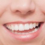 電動歯ブラシ人気ランキングと正しい使い方・注意点